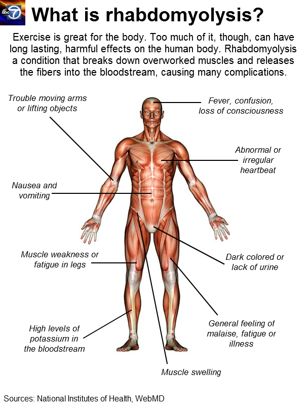muscular - human body systems, Muscles